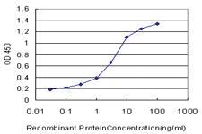 Anti-QPCT Mouse Monoclonal Antibody