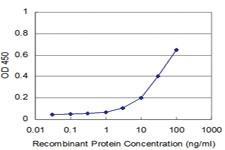 Anti-RAB17 Mouse Monoclonal Antibody