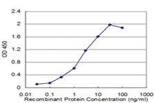 Anti-RAB27A Mouse Monoclonal Antibody