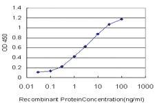 Anti-RNF151 Mouse Monoclonal Antibody