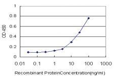 Anti-RNF17 Mouse Monoclonal Antibody