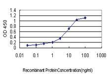 Anti-SLC9A1 Mouse Monoclonal Antibody