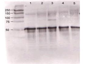 Anti-ANGPT1 Rabbit Polyclonal Antibody