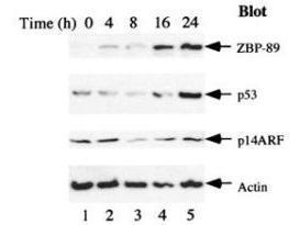 Anti-ZNF148 Rabbit Polyclonal Antibody
