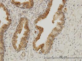 Anti-AAAS Mouse Monoclonal Antibody