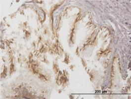 Anti-ABCC4 Mouse Monoclonal Antibody