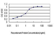 Anti-ACACA Mouse Monoclonal Antibody