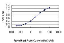 Anti-ACOX2 Mouse Monoclonal Antibody