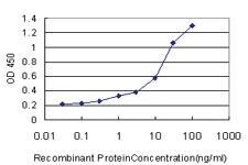 Anti-AKR1C2 Mouse Monoclonal Antibody