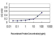 Anti-ASNS Mouse Monoclonal Antibody