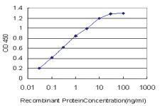 Anti-CACNB2 Mouse Monoclonal Antibody