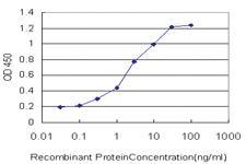 Anti-CENPJ Mouse Monoclonal Antibody