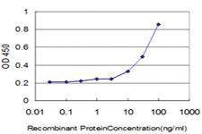Anti-DLD Mouse Monoclonal Antibody