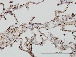 Anti-EML2 Mouse Monoclonal Antibody