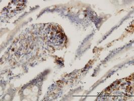 Anti-ENTPD6 Mouse Monoclonal Antibody