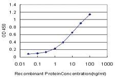 Anti-EPM2AIP1 Mouse Monoclonal Antibody