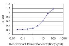 Anti-ESR2 Mouse Monoclonal Antibody