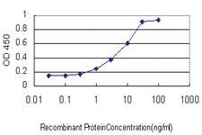 Anti-ETV1 Mouse Monoclonal Antibody