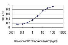 Anti-EVL Mouse Monoclonal Antibody