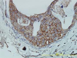 Anti-F11R Mouse Monoclonal Antibody