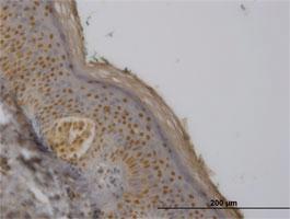 Anti-FBXO11 Mouse Monoclonal Antibody