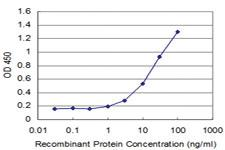 Anti-FOXO1 Mouse Monoclonal Antibody