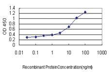 Anti-GP1BA Mouse Monoclonal Antibody