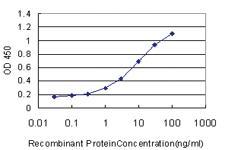 Anti-GSDMB Mouse Monoclonal Antibody