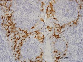 Anti-GSTA3 Mouse Monoclonal Antibody