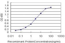 Anti-GSTM5 Mouse Monoclonal Antibody