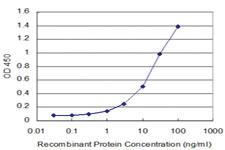 Anti-GTF3A Mouse Monoclonal Antibody