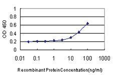 Anti-IL1B Mouse Monoclonal Antibody