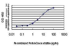 Anti-KDM5A Mouse Monoclonal Antibody