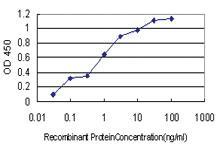 Anti-COL20A1 Mouse Monoclonal Antibody