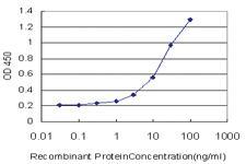 Anti-LRAT Mouse Monoclonal Antibody