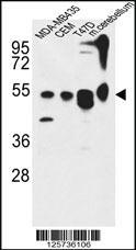 Anti-ATG13 Rabbit Polyclonal Antibody