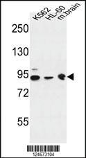 Anti-DNAJC6 Rabbit Polyclonal Antibody