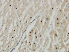 Anti-TTN Mouse Monoclonal Antibody