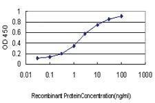Anti-TUBB2A Mouse Monoclonal Antibody