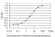 Anti-ULK2 Mouse Monoclonal Antibody