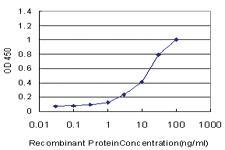 Anti-USH1C Mouse Monoclonal Antibody