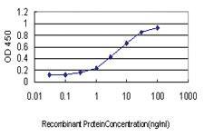 Anti-YWHAG Mouse Monoclonal Antibody
