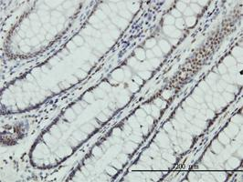 Anti-ZNF143 Mouse Monoclonal Antibody