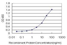 Anti-ZNF263 Mouse Monoclonal Antibody