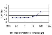 Anti-IKZF3 Mouse Monoclonal Antibody