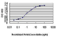 Anti-MYBPC1 Mouse Monoclonal Antibody
