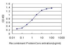 Anti-MYL5 Mouse Monoclonal Antibody