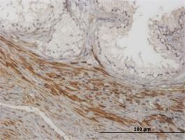 Anti-NKIRAS1 Mouse Monoclonal Antibody