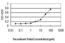 Anti-NLGN4Y Mouse Monoclonal Antibody