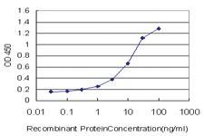 Anti-NSDHL Mouse Monoclonal Antibody